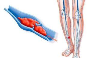 Красные точки на ногах в следствии тромбоза
