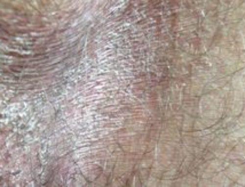 Шелушится кожа в паху – что это, фото, причины и лечение